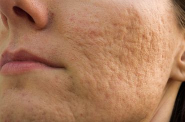 A woman with acne scars on the cheek
