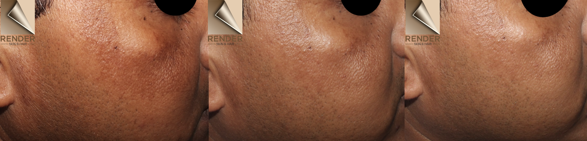 An image of melasma on the cheek demonstrating a clearance of pigment with Picoway laser, done by Dr Renita Rajan