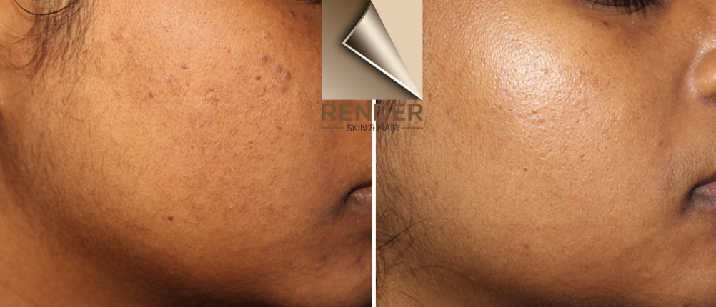 A picture of skin rejuvenation of the cheek, using Picoway done by Dr Renita Rajan
